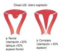Clase U2. Útero septado