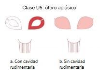 Clase U5. Útero aplásico