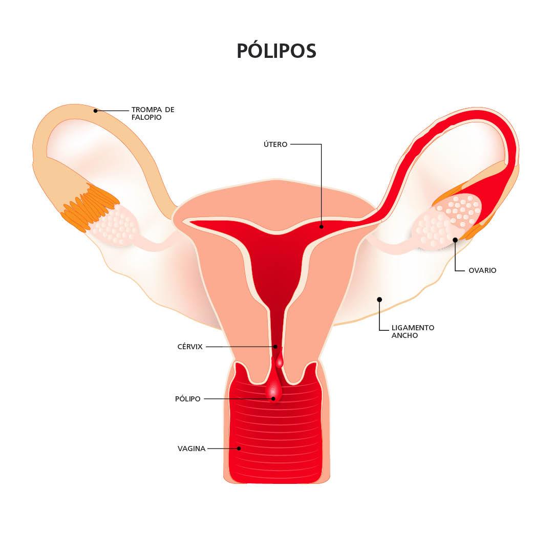 Pólipos endometriales